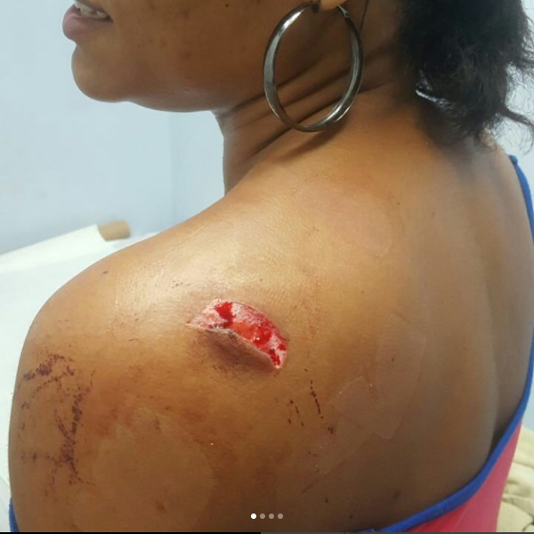 Dancehall Artist Bridgez Injured In Knife Attack